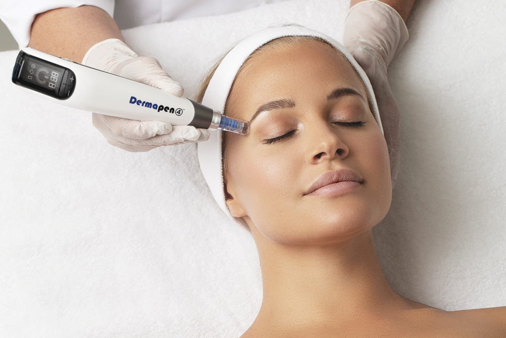DERMAPEN 4 – Microneedling Treatment